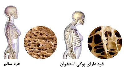 با مصرف کلسیم از پوکی استخوانها جلوگیری کنید