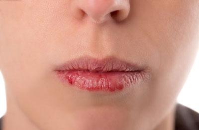 لب های ترک خورده و پوسته پوسته از علائم مصرف علف است .