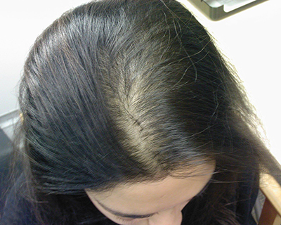 ریزش مو در مردان و زنان اندکی متفاوت است