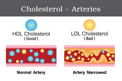 روش های کمکی برای کاهش کلسترول